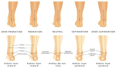 Deformacja stopy - wada koślawości i szpotawości. Stopa ludzka normalna i stopa z pronacją lub płaskostopiem, z deformacją tylnej części stopy