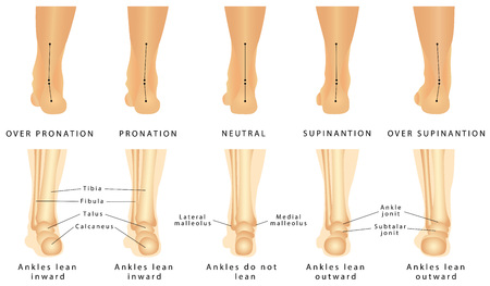 Foot deformation - Valgus and varus defect. Normal human foot and the foot with pronation or flatfoot, with hindfoot deformity
