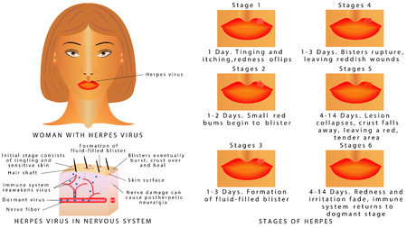Herpes virus infections on the lips. Stages of herpes virus on the lips. Inflammation of the lip. Herpes Virus in nervous system. Woman with herpes virus on white background Stock Illustratie