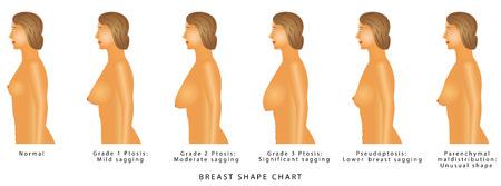 Tabla de forma de mama. Grados de ptosis. Conjunto con busto de mujer. Tamaño y tipo de mama sobre un fondo blanco.