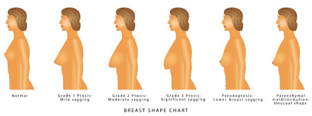 Tableau de la forme des seins. Degrés de ptose. Sertie de buste de femme. Taille et type de sein sur fond blanc