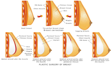 Plastic surgery of breast. Diagram about method of insertion for breast implant. Cosmetic surgery illustration. Anatomy of the breast and implants. The rise and increase of breast plastic surgery