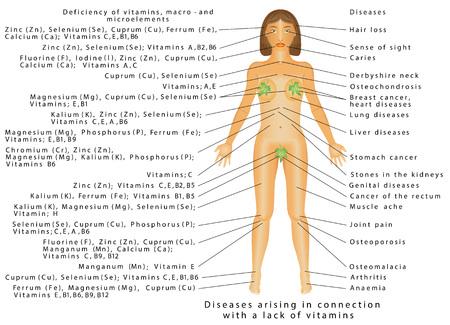 Vitamin deficiency. Diseases of Vitamins, macro - and microelements Illustration
