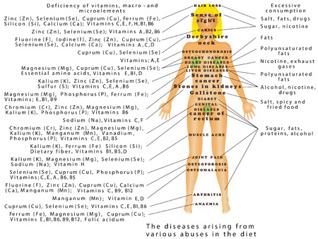 Abuse of diet. The disease arising from various abuses in the diet. Diseases of Vitamins, macro - and microelements Illustration