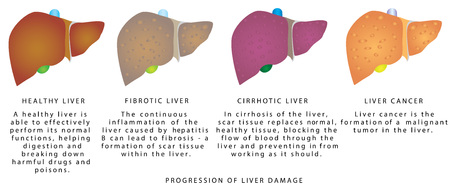 Liver disease. Stages of liver damage. Liver disease, anatomy, alcohol abuse, hepatitis.  イラスト・ベクター素材