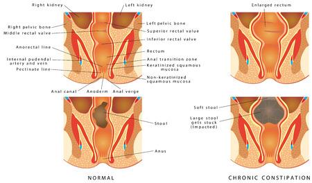 Chronische constipatie. Grote kruk komt vast te zitten - geïmpacteerd. Diarree en maagpijn, constipatie en misselijkheid. De Bristol Stool Form-schaal. Vector Illustratie