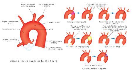 Coarctation repair. Coarctation of Aorta, congenital defect of the aorta (narrowing of the aortic arch). Major surgical aortic coarctation repair techniques.