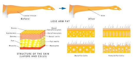 Lose arm fat. Subcutaneous fat distribution in human. Anatomy of Human Skin layer and arm. Women with arm imbalance of body fat. Illustration