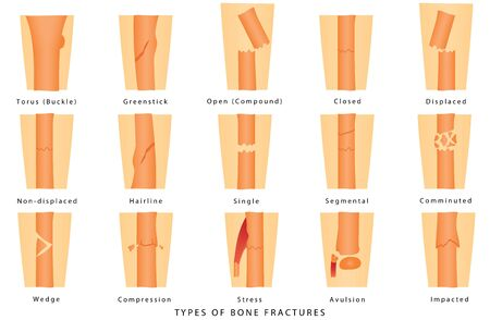 Types of bone fracture. Human Broken Bone. Different types of bone fractures. Types of bone fractures medical skeleton anatomy educational vector illustration about injury and disease on white background