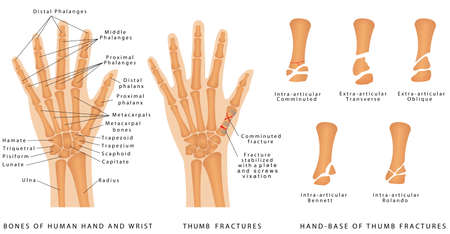 Thumb Fractures. Human hand bones anatomy. Hand - Base of Thumb Fractures. Displaced Fracture and Fracture without displacement. Use of wires, plates and screws to treat the various fractures