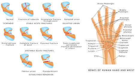 Wrist fracture (Scaphoid). Classification of scaphoid fractures. Break of the scaphoid bone in the wrist. Scaphoid bone fracture medical vector illustration on white background