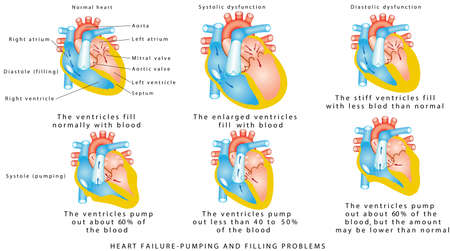 Heart failure. Heart Failure - Pumping and Filling Problems, Systolic Dysfunction, Diastolic Dysfunction. Heart failure or congestive heart failure. Diseases of the Heart. Vectores