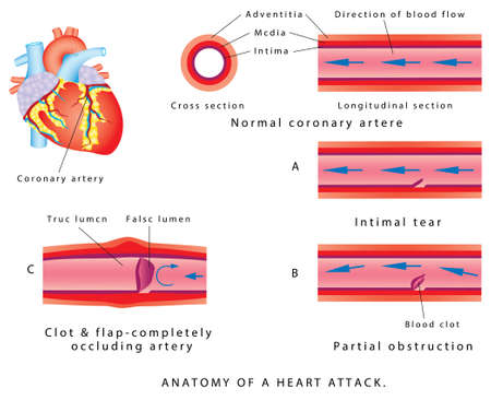 Anatomy of a heart attack. Vectores