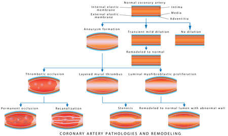 Coronary Artery Pathology. Arterial Remodeling. Medical illustration of Coronary Artery Pathologies and Remodeling. Coronary Artery Disease.