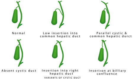 Variants of cystic duct. Common variations in biliary anatomy. Variations in Cystic and Hepatic Ducts. Human gallbladder, gallbladder connection to the bile ducts. Pathology of the gallbladder