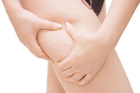 muslos: Mujer joven con celulitis