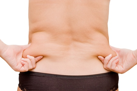 girl with a cellulitis on a stomach Stock Photo - 8596493