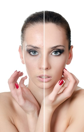The beautiful girl with problems on face Stock Photo - 13905679