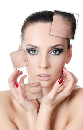 The beautiful girl with problems on face Stock Photo - 13905685