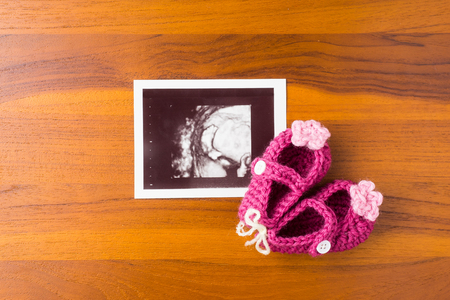photo of ultrasound baby foot with cute pink wool shoe on wood desktop Stock Photo