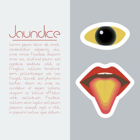 Jaundice concept Illustration