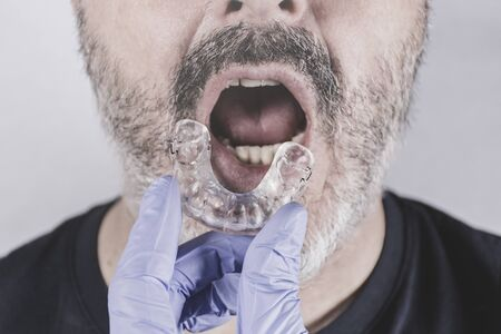 Hand with blue glove holding a dental splint, facing an adult man with his mouth ajar Stock Photo