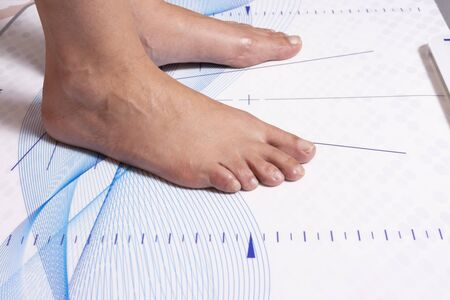 Feet of a woman on the table for the biomechanical study of the tread and position of the foot Banco de Imagens