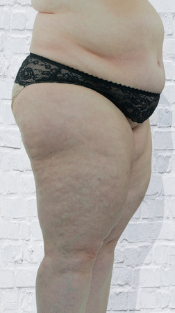 Woman showing her cellulite