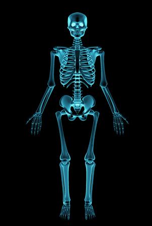 Negative Röntgenaufnahme Eines Menschlichen Skeletts Lizenzfreie ...