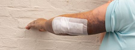 Bruise on the whole arm and at elbow break Stock Photo
