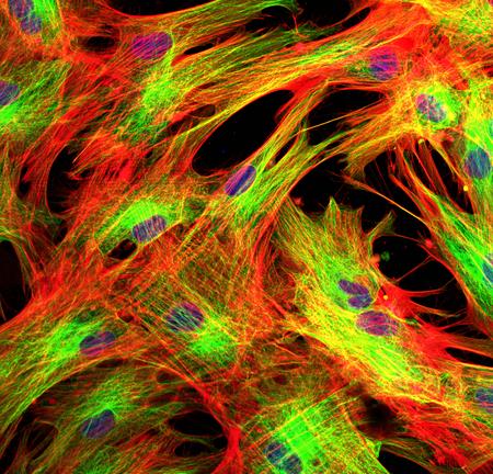 Fibroblasten (Hautzellen) mit fluoreszierenden Farbstoffen markiert Standard-Bild - 83412255