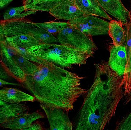 Fibroblasten (huidcellen) gemerkt met fluorescerende kleurstoffen
