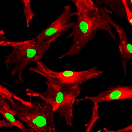 Le cellule staminali mesenchimali marcate con molecole fluorescenti Archivio Fotografico