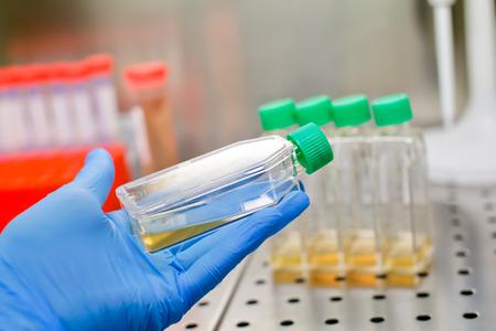 Hand im blauen Handschuh mit Zellkulturflasche im laminaren Innenraum Standard-Bild - 98532159