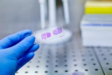 Close up photo of hand in blue glove handing histological liver tissue sample Foto de archivo