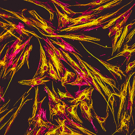 Real fluorescence microscopic view of human skin cells in culture. Actin filaments are in pink, tubulin was labeled with green