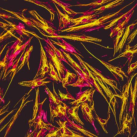 Vue microscopique à fluorescence réelle des cellules de la peau humaine en culture. Les filaments d'actine sont en rose, la tubuline a été étiquetée en vert Banque d'images