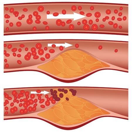 Placa de colesterol en la ilustración de arterias (arteriosclerosis)