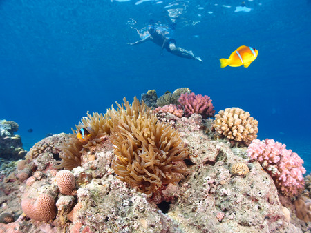A sea anemone with a person snorkeling in the background