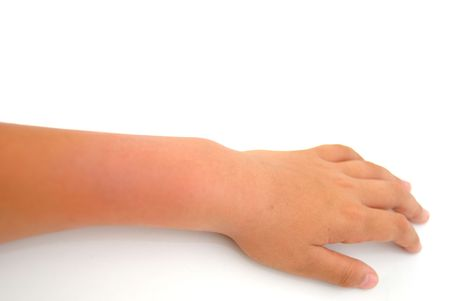 dislocation: Teen arms swollen after a dislocation  Stock Photo