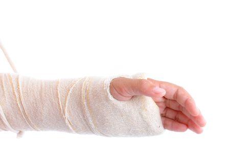 brazo roto: Brazo roto inmovilizado en fondo blanco.