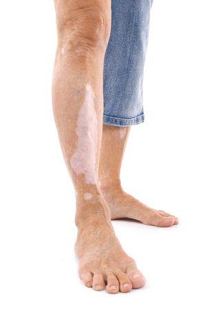 Leg mit Vitiligo - Hautkrankheit. Standard-Bild