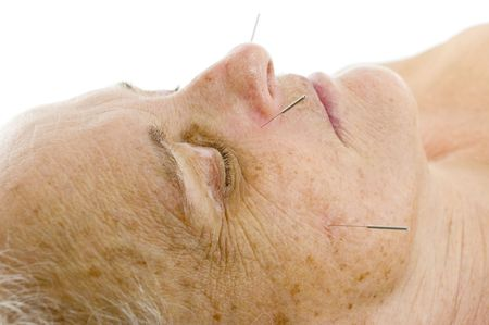 Acupuncture - Application of needles in senior at the spa . Stock Photo - 7075969