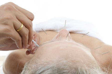 Acupuncture - Application of needles in senior at the spa . photo