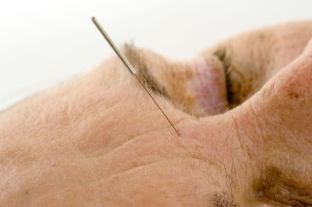 Acupuncture - Application of needles in senior at the spa . Stock Photo - 6239845