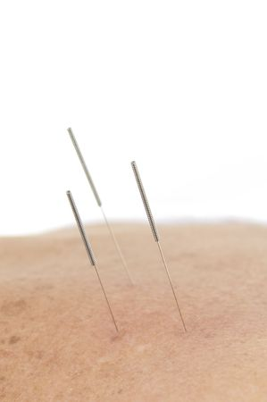 Acupuncture - Application of needles in the backs . photo