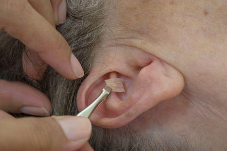Anwendung der Samen in das Ohr--Auricular Saatgutbehandlung