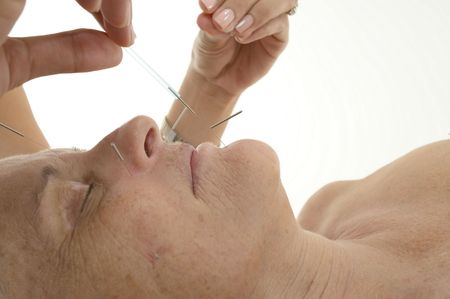 Acupuncture - Application of needles in senior at the spa . Stock Photo - 6268708