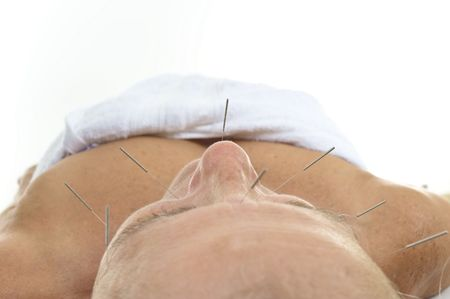 Acupuncture - Application of needles in senior at the spa .