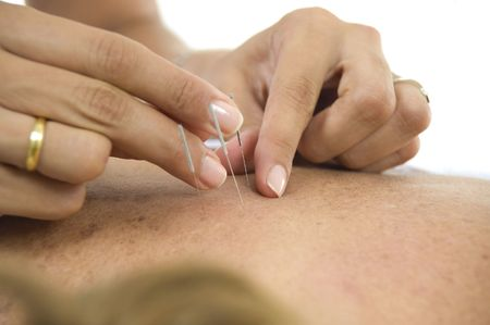 backs: Acupuncture - Application of needles in the backs . Stock Photo